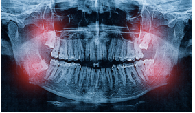 tooth extraction Brighton Ma | Wisdom teeth extraction Brighton MA