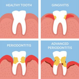 How to prevent gum disease | Gum Disease in Brighton MA | Dentist in Brighton MA