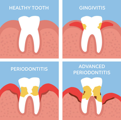 Gum Disease in Brighton MA