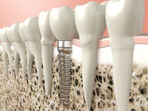 Dental implants in Brighton MA