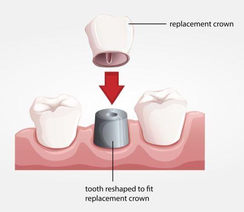 Dental Crowns Brighton MA