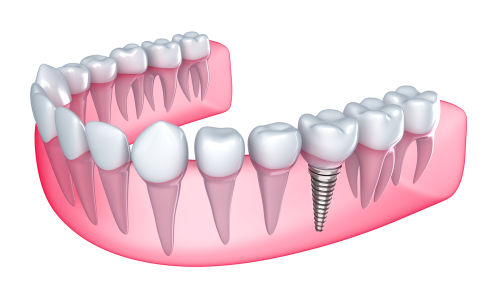 dental implants Brighton MA