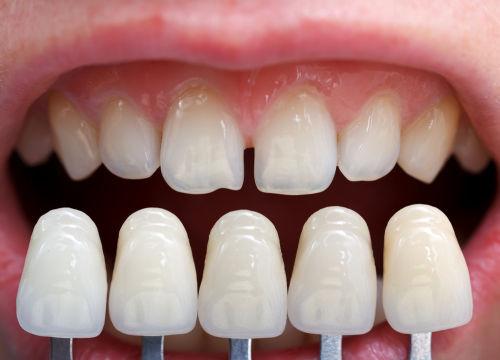 dental veneers Brighton MA | Cosmetic Dentist