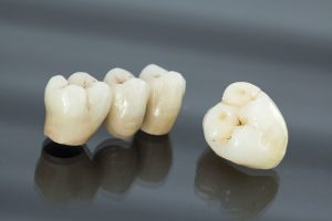 Dental Bridge Brookline |